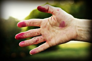 My hand after a morning of picking black raspberries!
